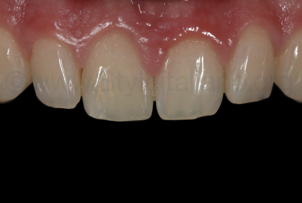 highly glossy composite surfaces of incisor restorations