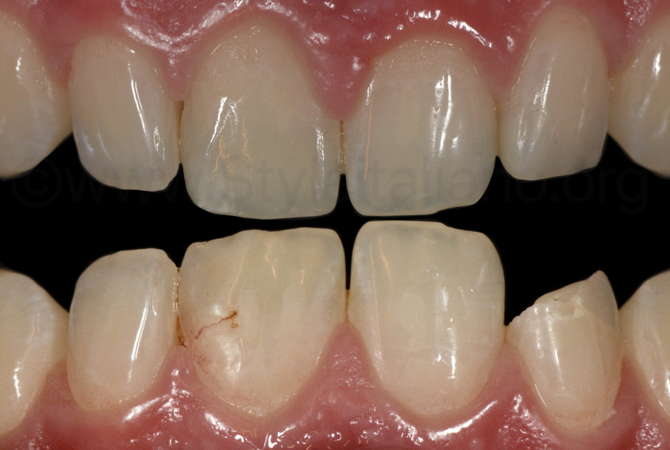 before and after composite restoration of central and lateral incisor