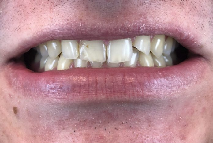 patient with broken lateral incisor