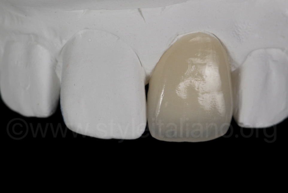 Zirconia crown of the tooth 21