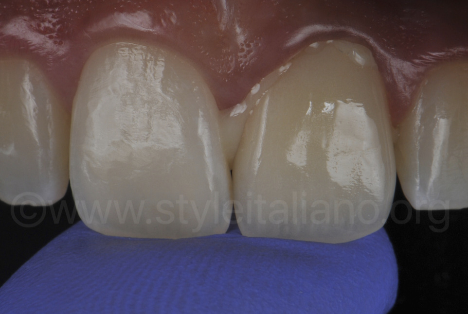 Insertion of the zirconia crown in the tooth preparation