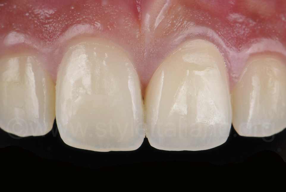 Zirconia crown after cementation style italiano clinical case