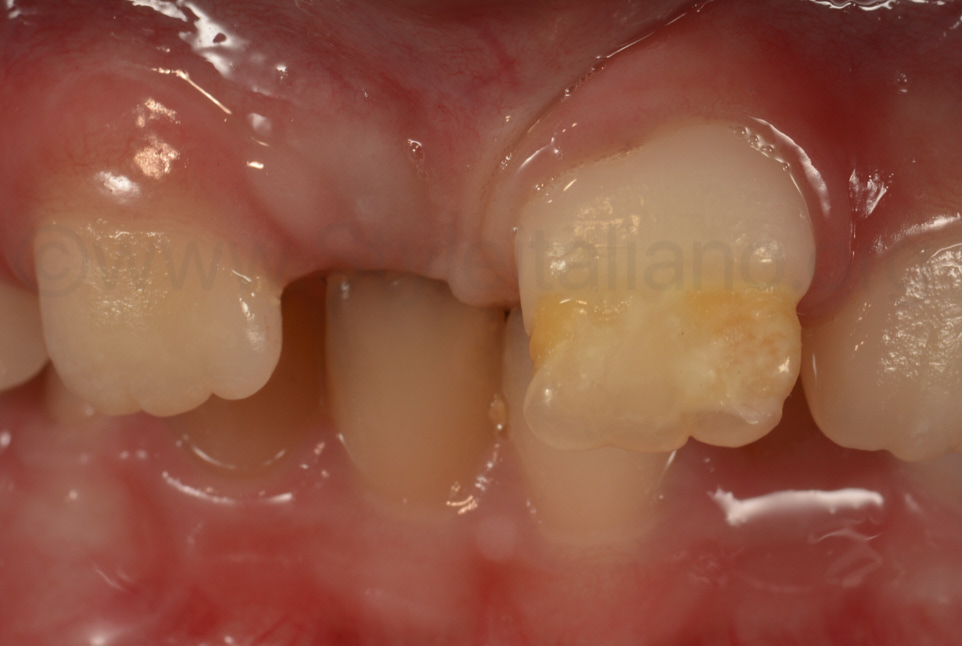 secondary central incisor after trauma on primary tooth