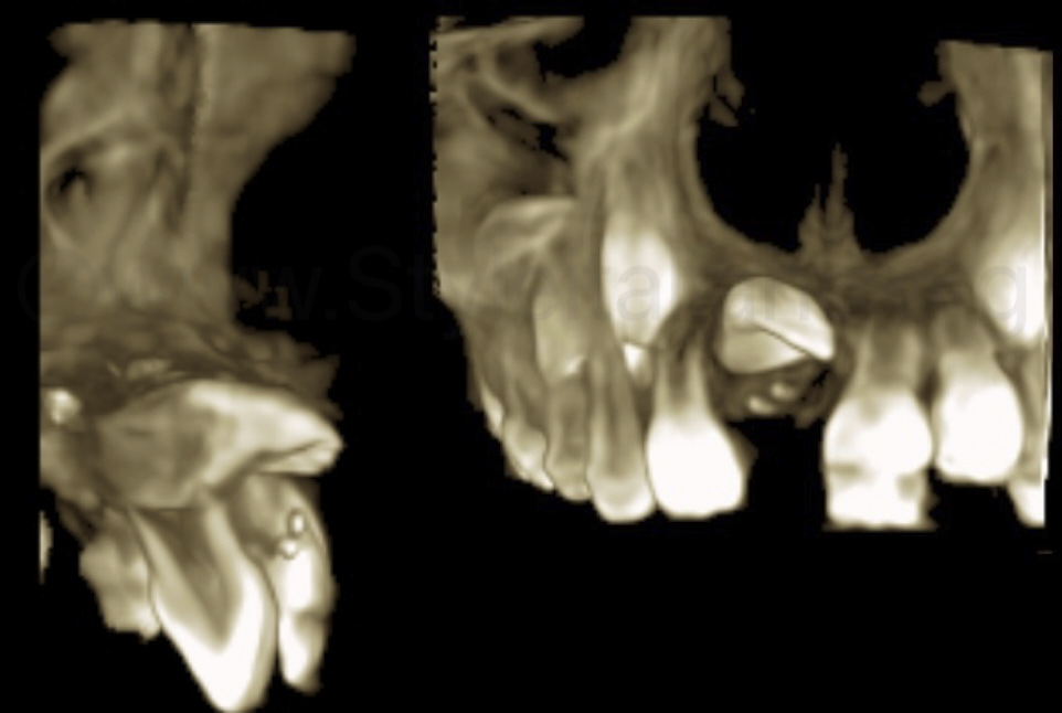 CBCT scan to analyze position of unerupted incisor