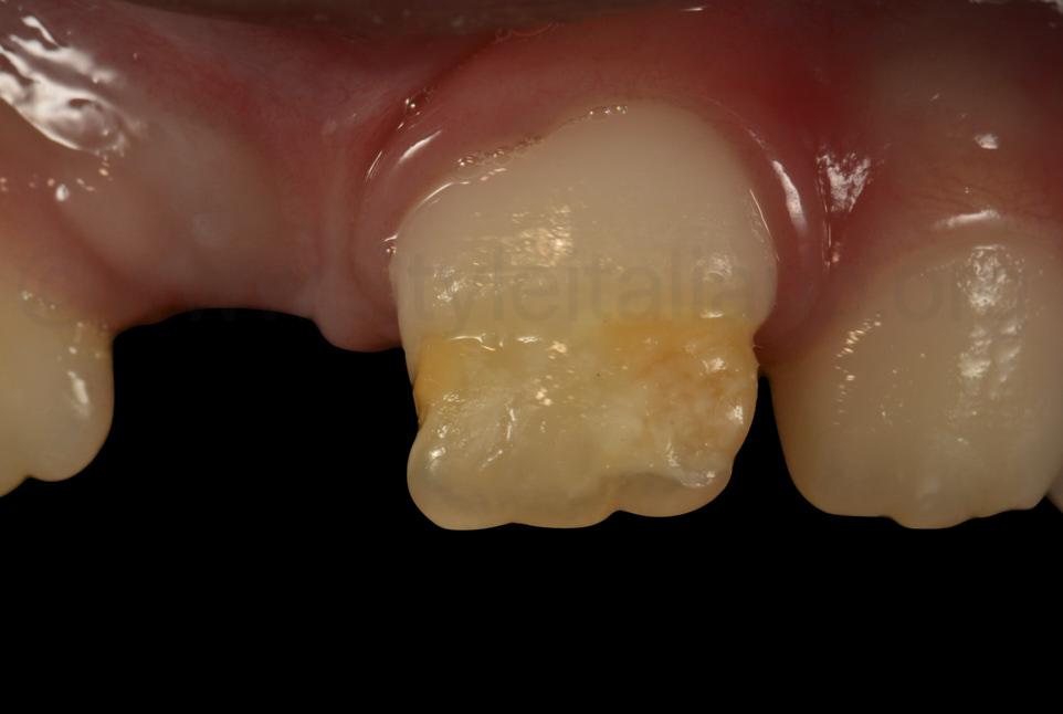 contrasted view of incisor severe hypo-lascia
