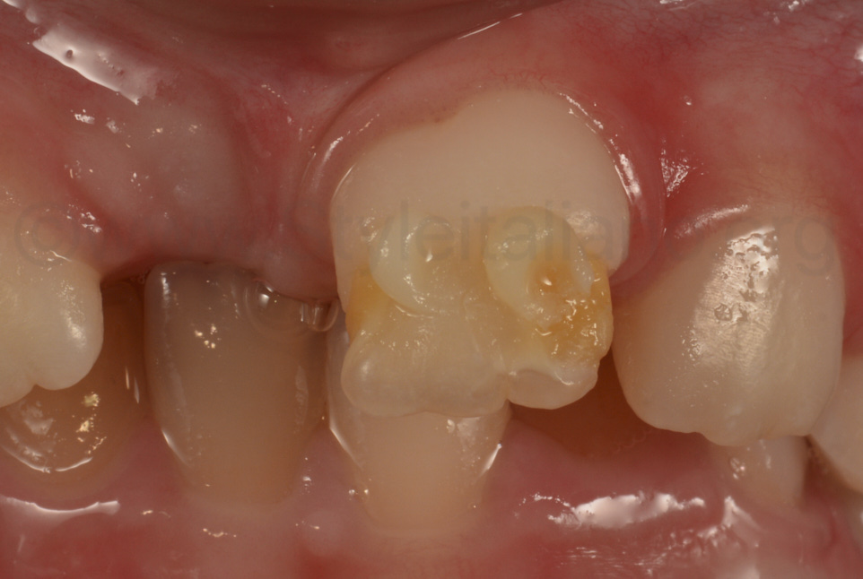 button try for color matching before restoring hypomineralized incisor
