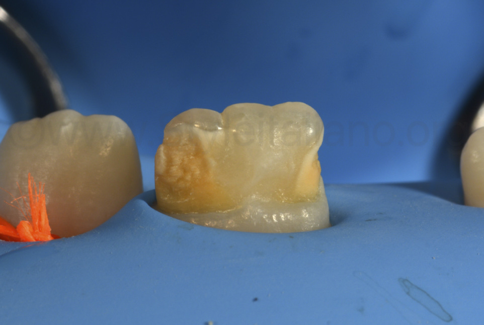 rubber dam isolation on young patient before restorative procedures