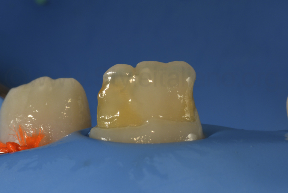 child's incisor after resin infiltration with icon