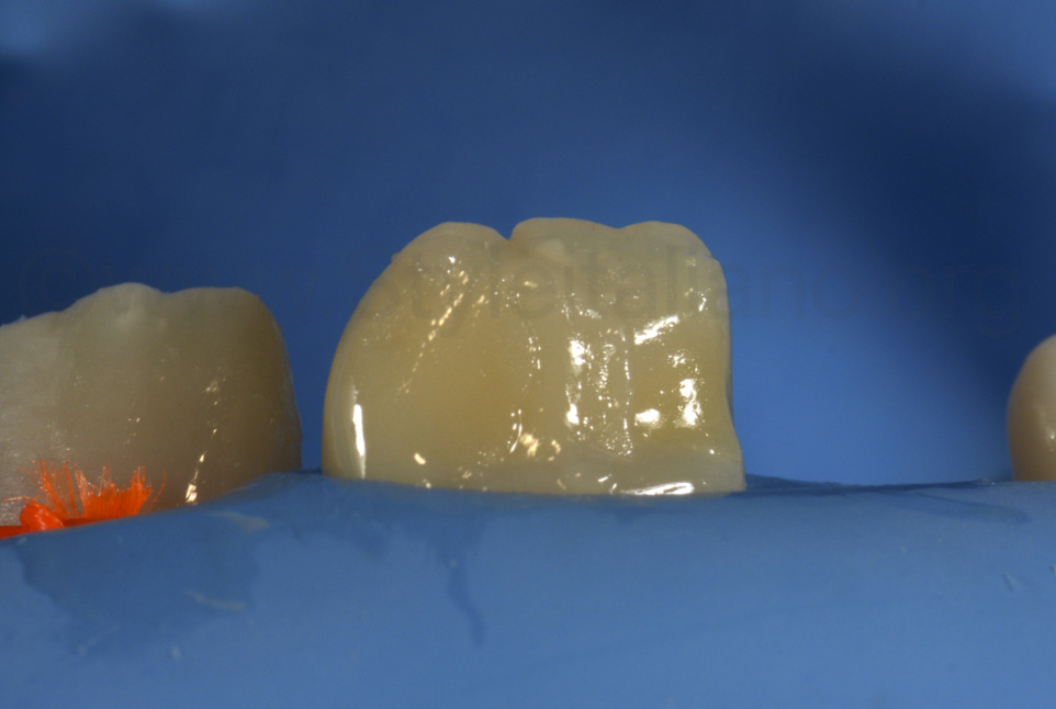 white dental beauty composite resin used to restore kid's tooth