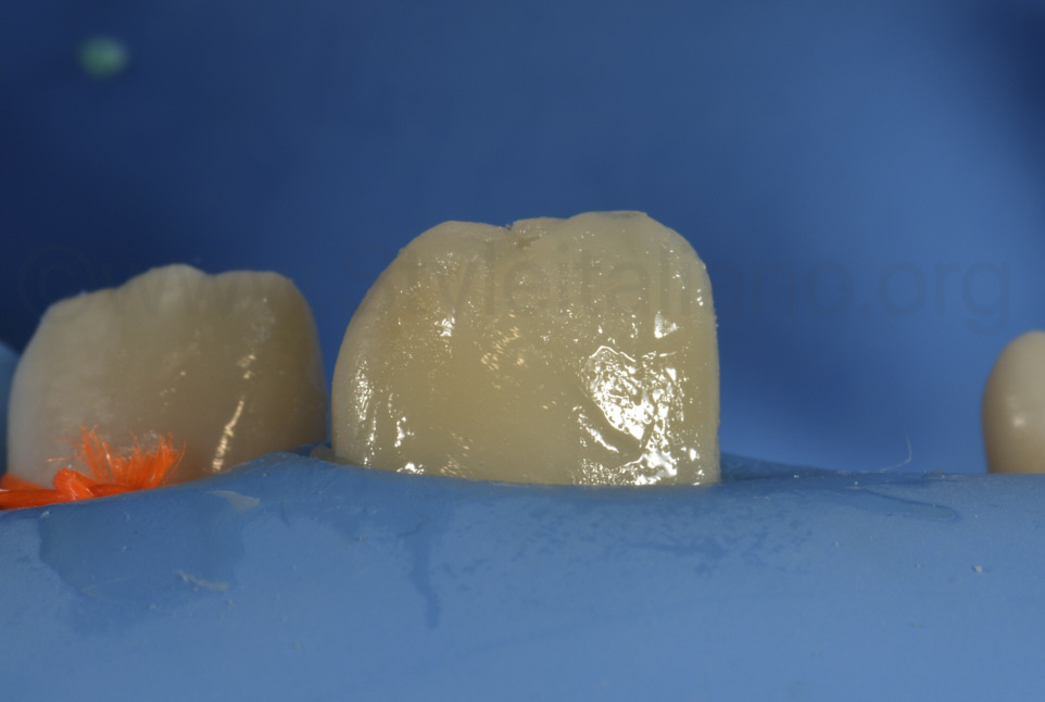 layering of dual-shade composite restoration on central incisor to restore shape and color