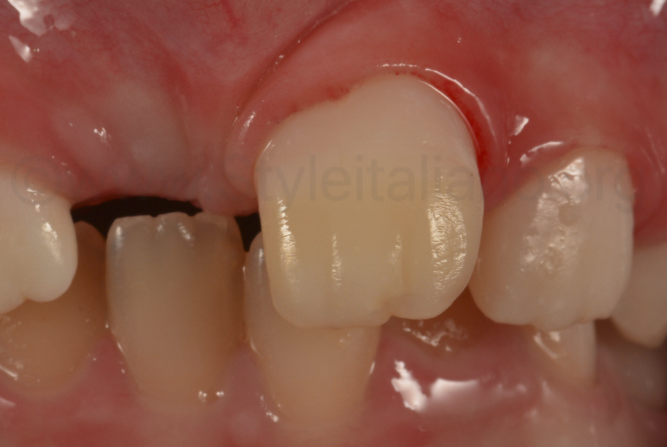 aspect of composite resin restoration after rubber dam removal before rehydration and healing