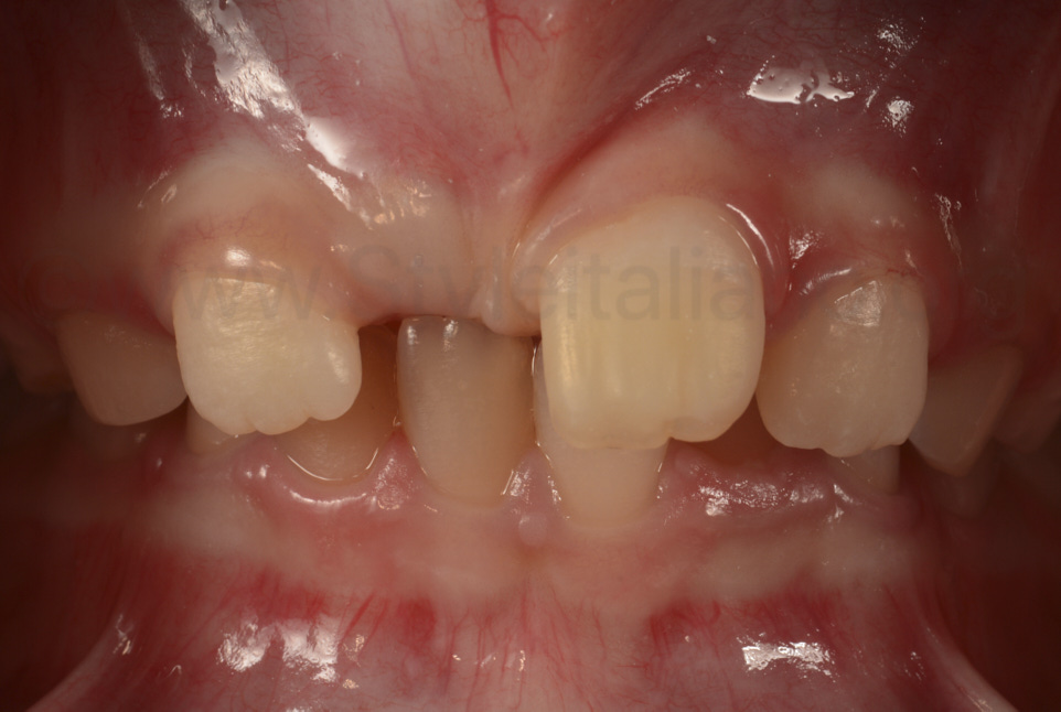 restored tooth after rehydration and gingival healing