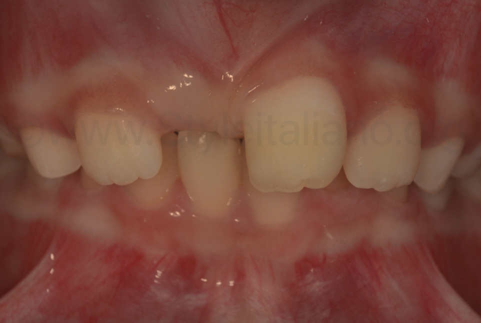 polarized picture showing integration of composite with tooth