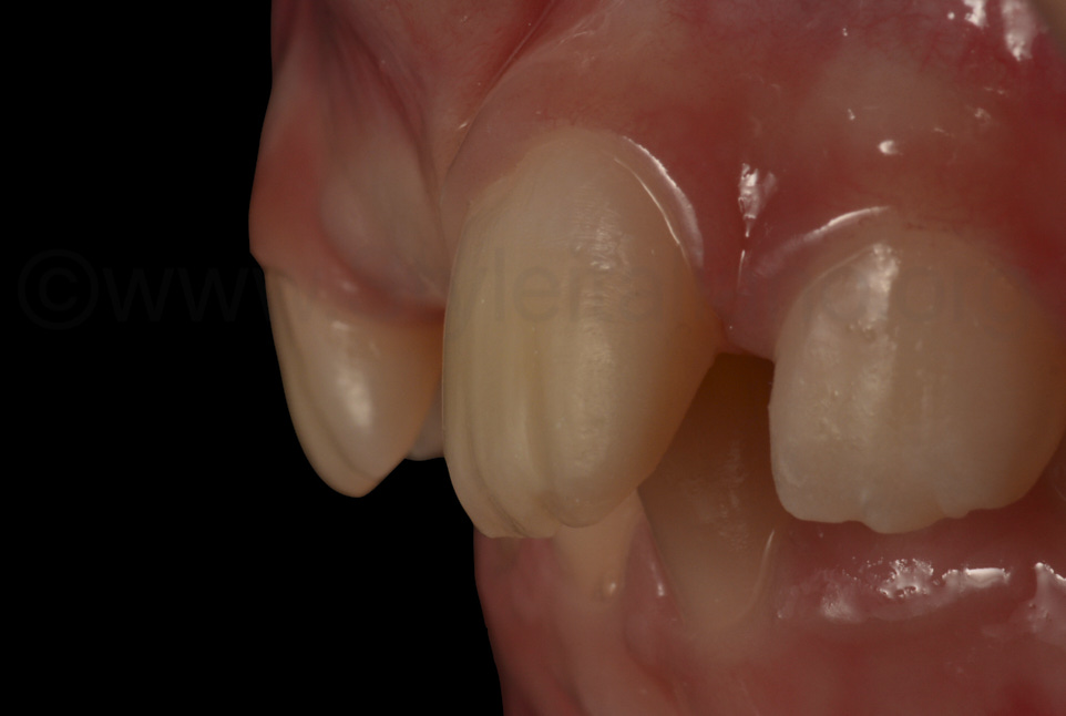 natural-looking surface texture of restored incisor