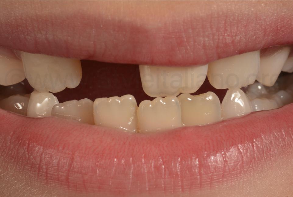 smile of happy patient after dental restoration