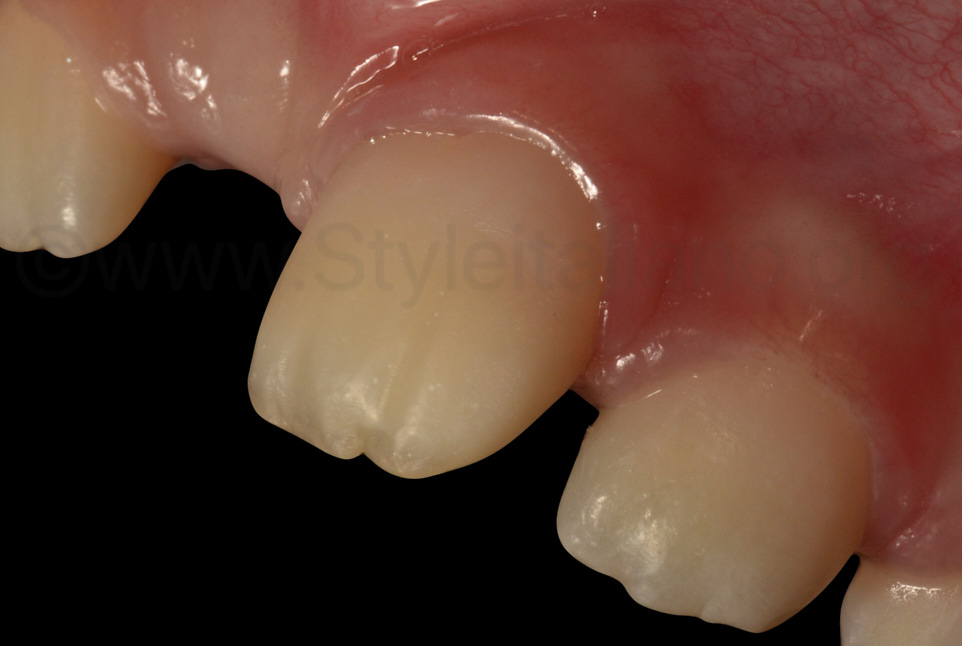 detail of the shape of composite restoration on central incisor