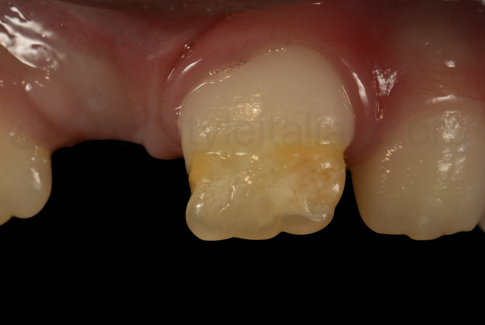 detail of hypomineralized central incisor