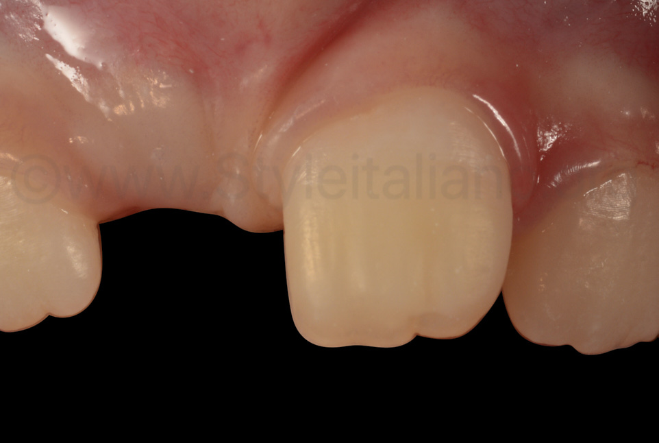 detail of natural composite direct restoration with minimally invasive technique