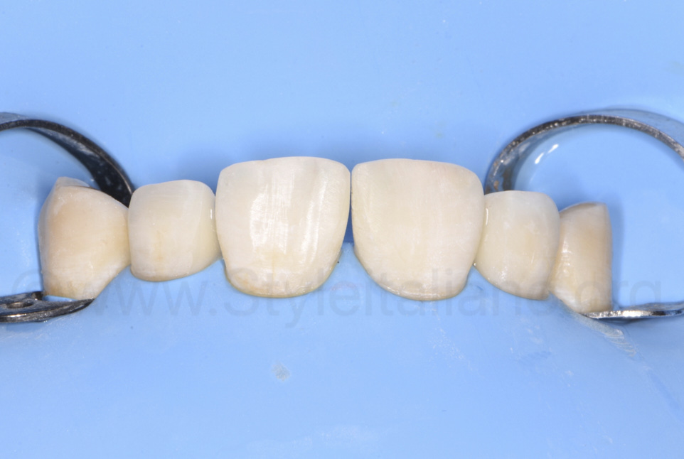 lateral incisors restored with composite resin close to diastemata
