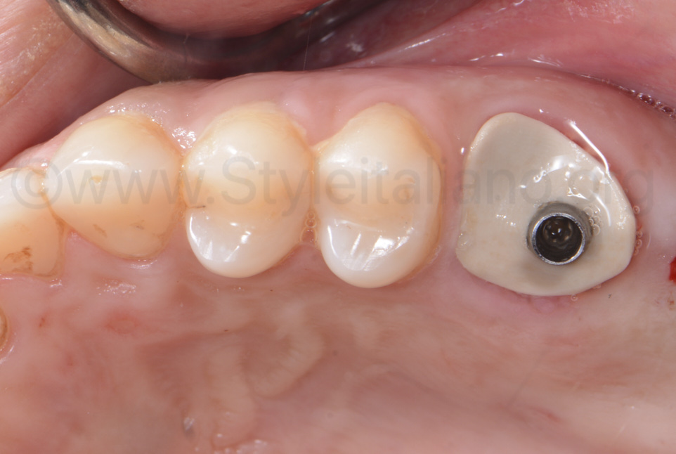 healed tissues with sealing socket abutment for socket abd gum preservation
