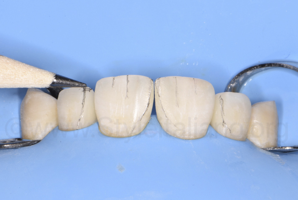 pencil marks for finishing of incisor restorations