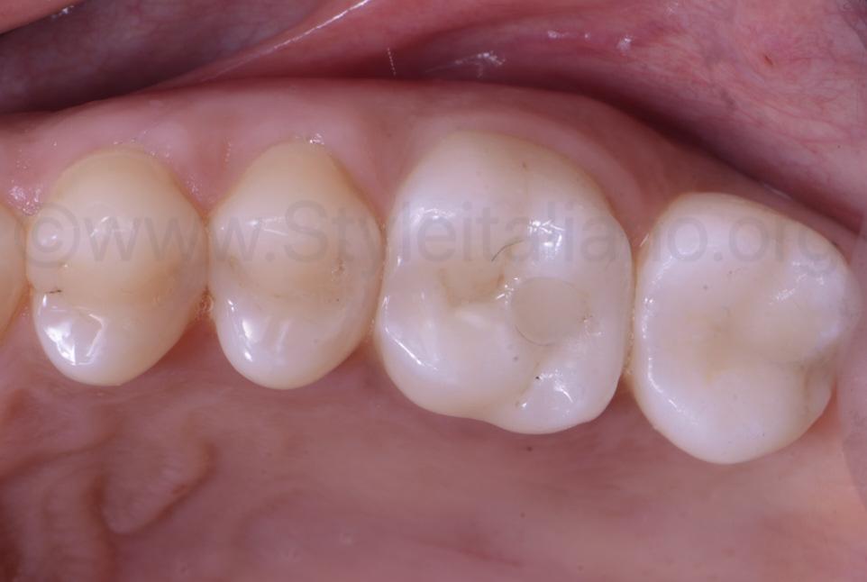 zirconia crowns on upper molars