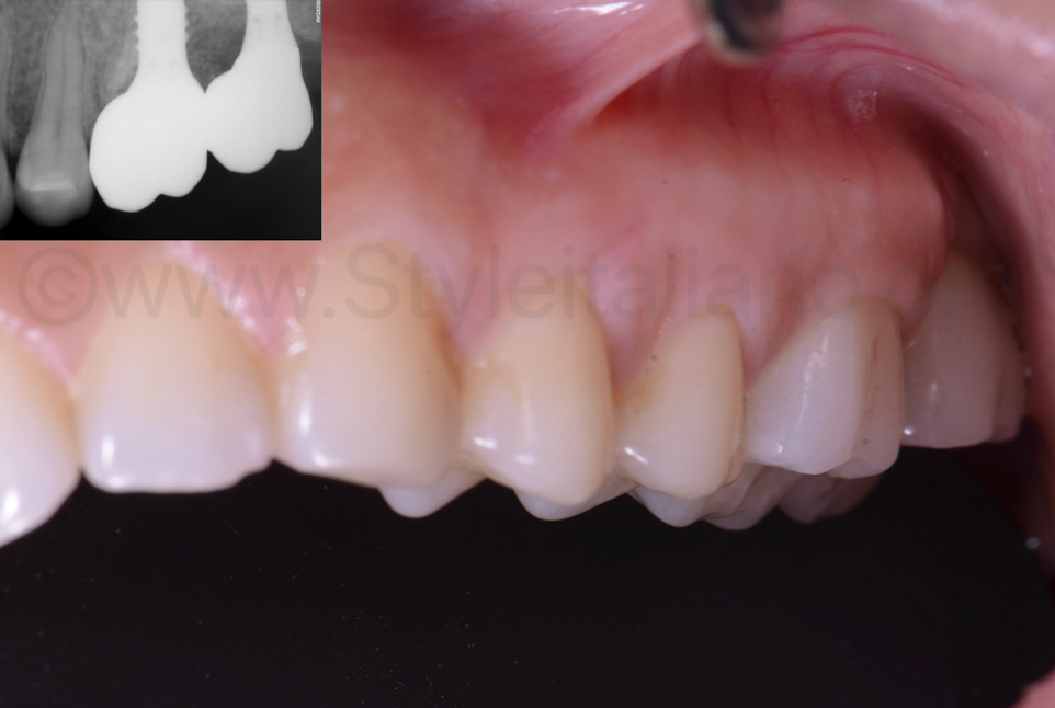 lateral view of implant supported molar crowns