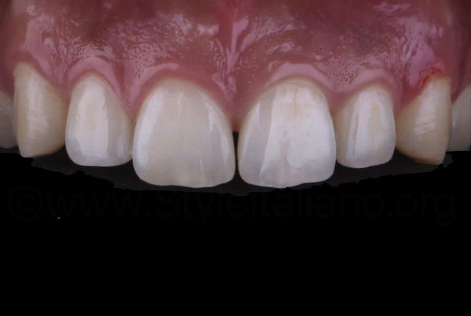 almost closed diasteams without tooth preparation