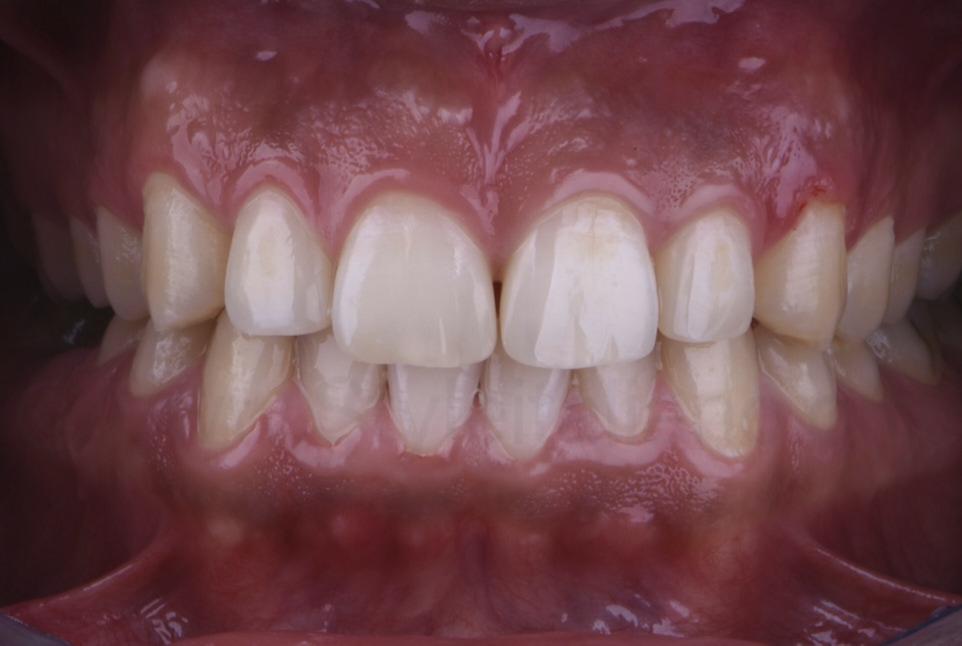 smile after direct diastema restorations
