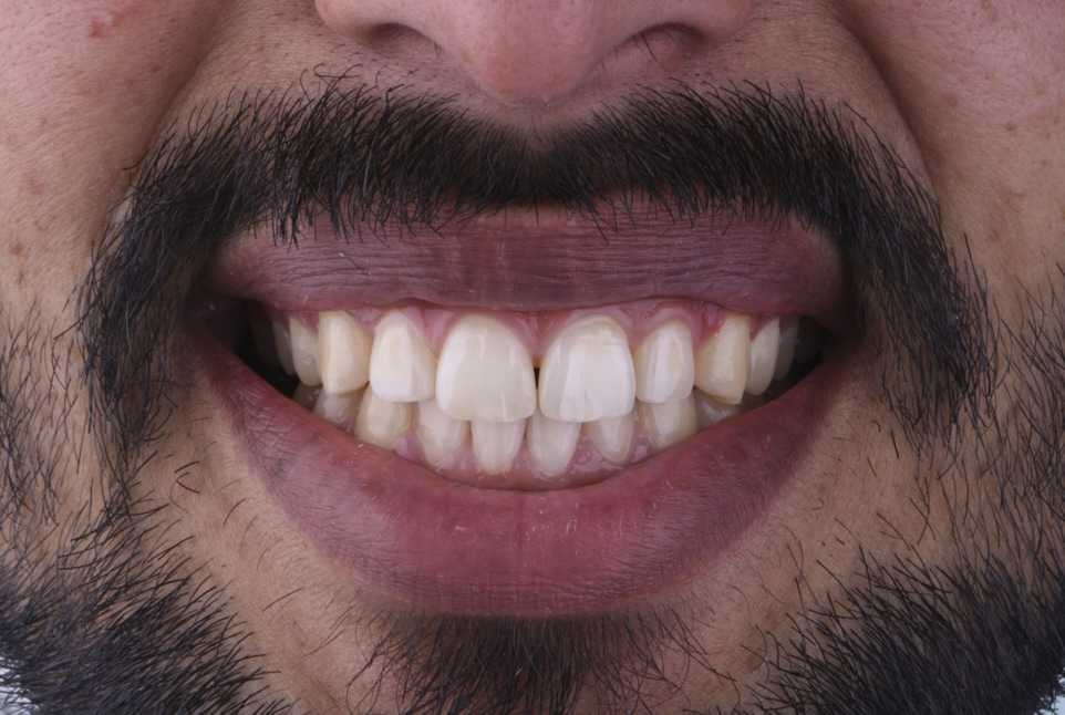 smile with wide central diastema between incisors