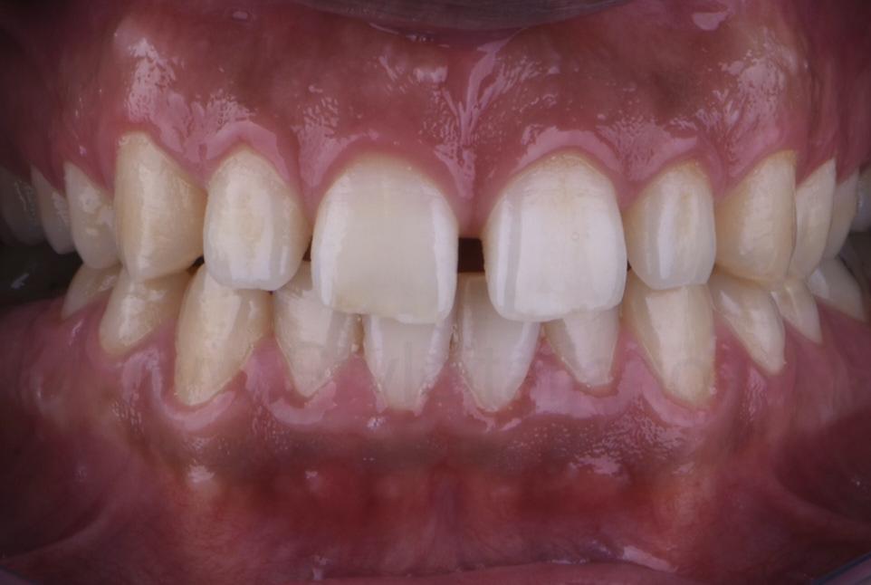 multiple diastemata between upper front teeth