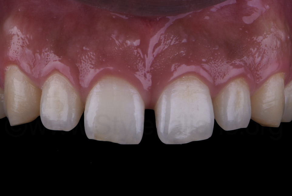 upper central and lateral incisors with wide gaps