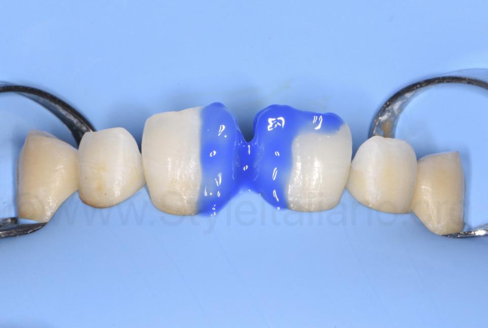 etching with orthophosporic acid of incisor enamel
