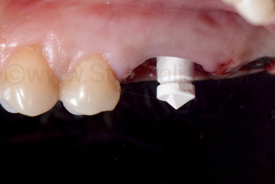 scan body for digital implant impression for custom abutment