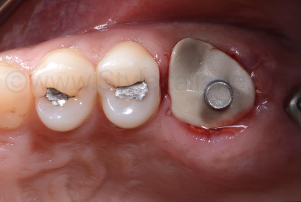 implant screwed sealing socket abutment