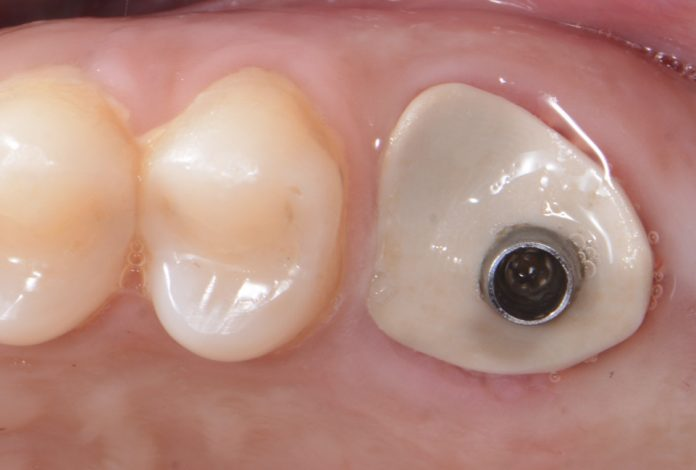 sealing socket abutment for immediate implant placement and gum preservation