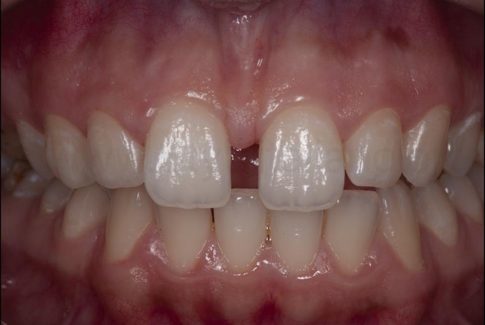 large median diastema between central incisors
