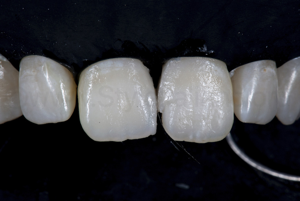 build up of composite mesial walls of central incisors