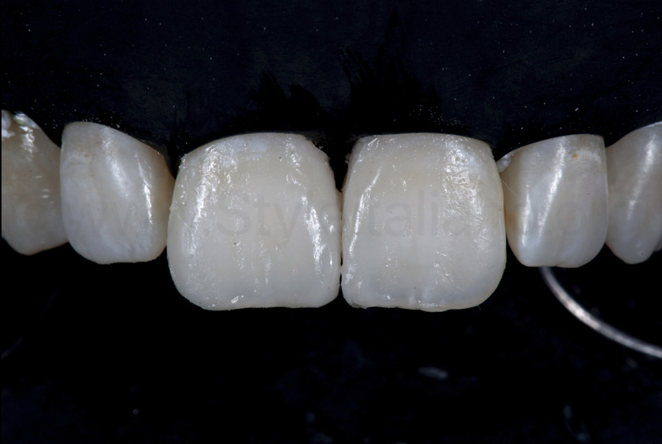 composite incisor restorations before finishing and polishing