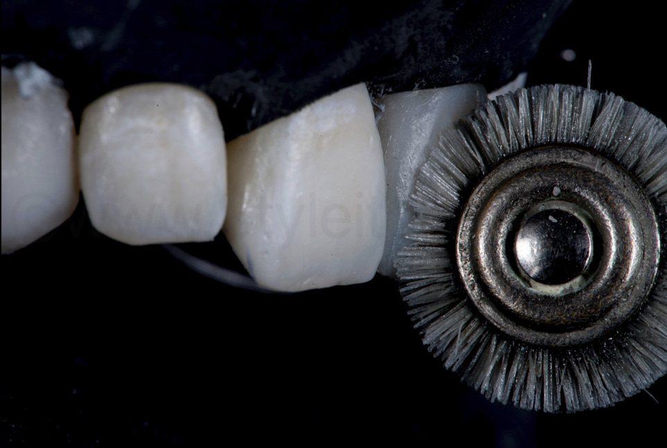 polishing of composite restorations with goat brush
