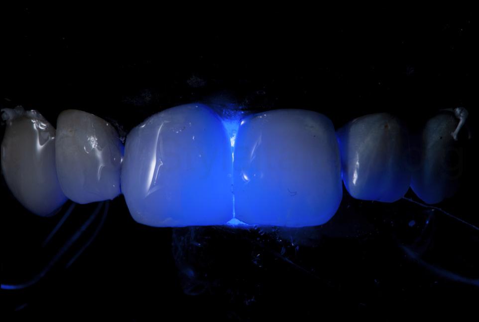 light curing under air blocking gel for full polimerization