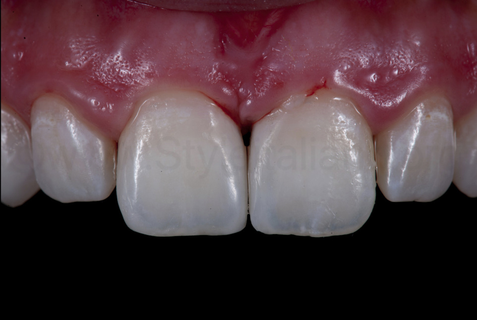 right after diastema closure with direct composite restorations