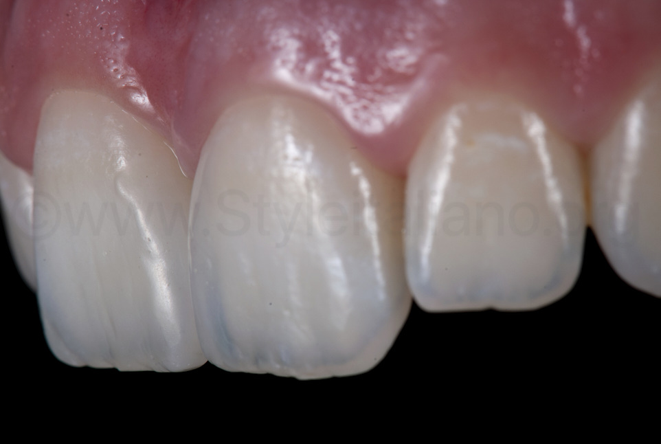 surface texture and anatomy of composite restorations on central incisors