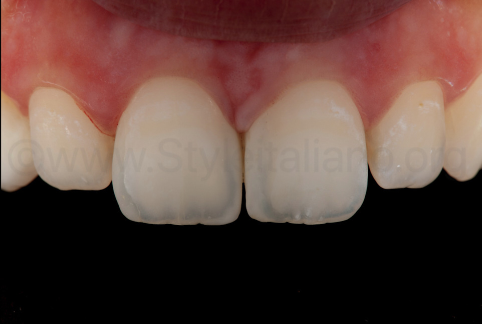 polarised picture to check final integration of composite restorations with teeth