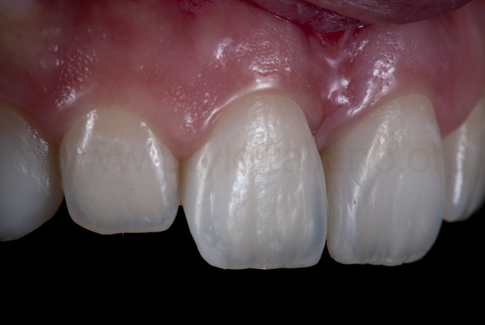 right view showing anatomy and texture of central incisors after restorations