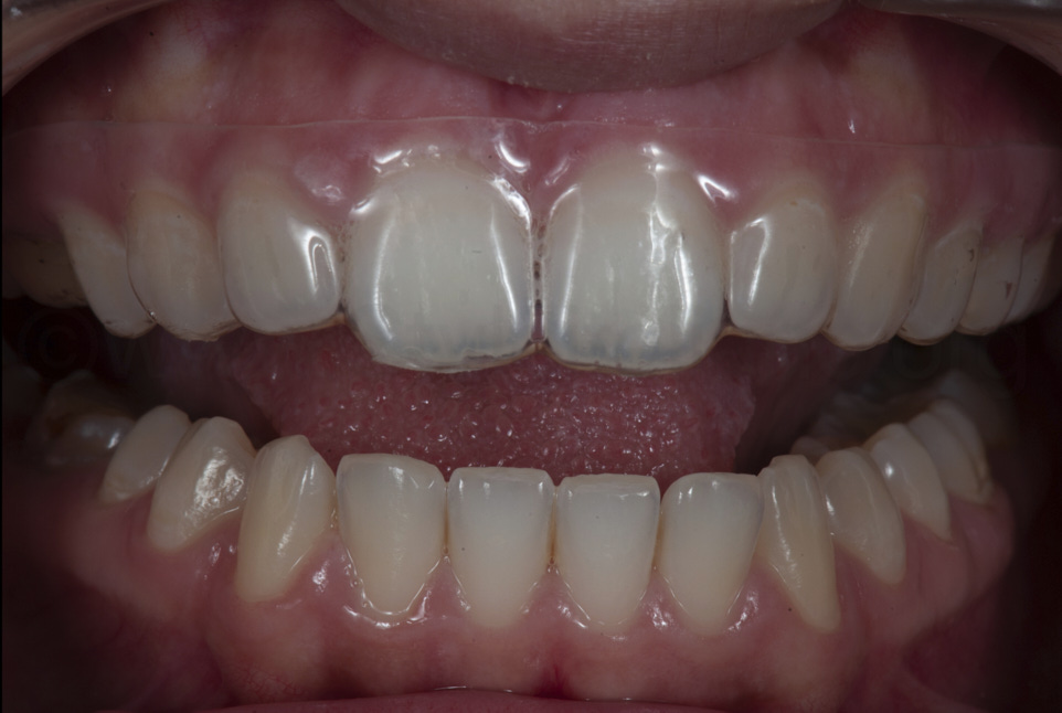 clear aligner to move teeth