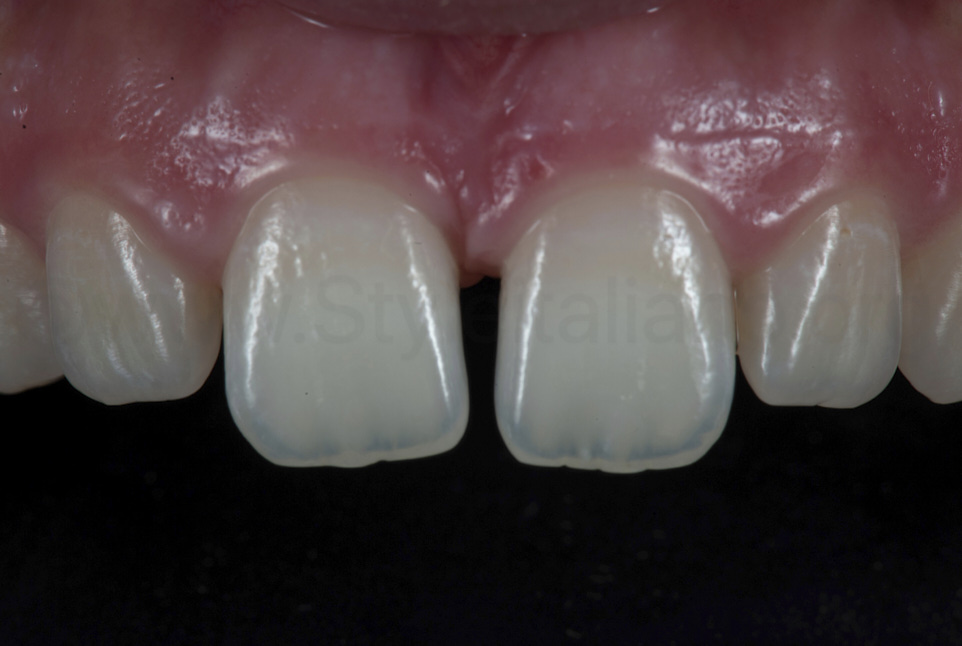 result of centered teeth after alignment before restoration