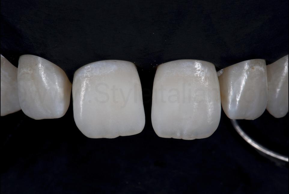 teeth under black rubber dam isolation