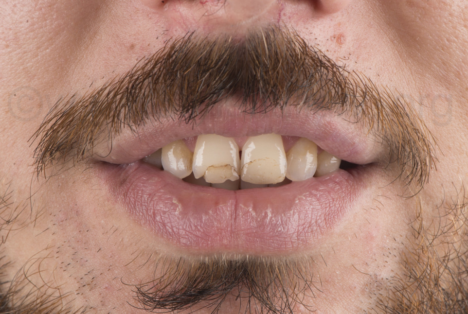 man with old chipped restorations on incisors
