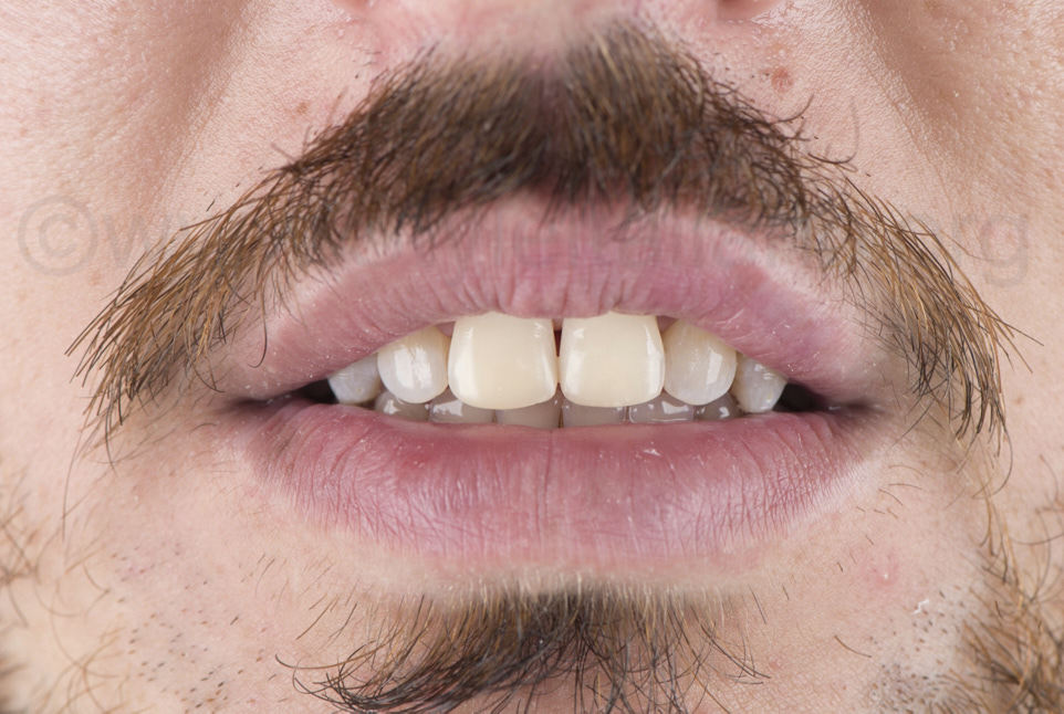 male central incisors after direct restoration